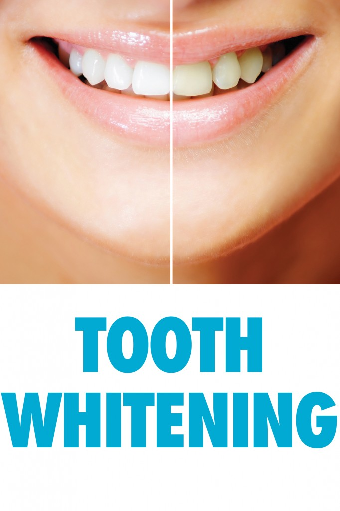Tooth Whitening and smile
