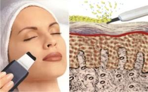 pulizia del viso indolore con gli ultrasuoni