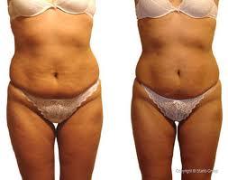 perdere peso girovita