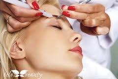 elettrodepilazione viso