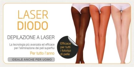 depilazione laser diodo