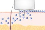 MIKRONEEDLING - ringiovanimento del viso